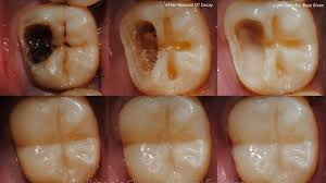 Oral disease isang seryosong problema sa bansa ayon sa DOH