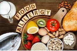 Food allergy, hindi dapat ipagwalang-bahala, ayon sa eksperto