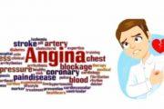 Angina Pectoris , isang sintomas ng atake sa puso at hindi sakit ayon sa eksperto