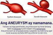 Aneurysm, isang kundisyon sa ugat ng  puso na dapat bantayan ayon sa eksperto