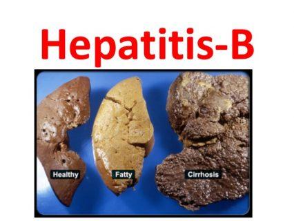 Mga batang edad 5 hanggang 6 na taon, mahalagang maprotektahan laban sa Hepatitis-B