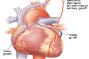 Coronary Artery Heart disease,   mahahadlangan ng  Calamansi habit - ayon sa pag-aaral